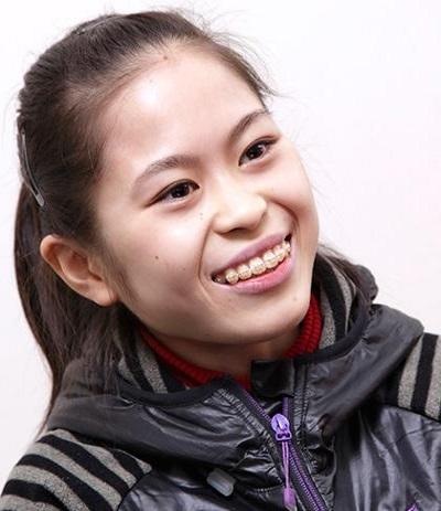 miyaharasatoko-smile2