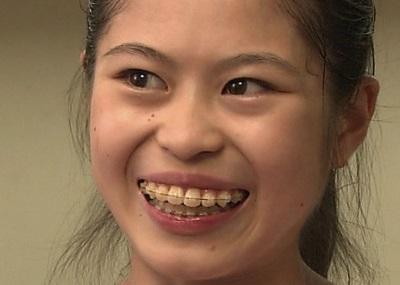 miyaharasatoko-tooth2