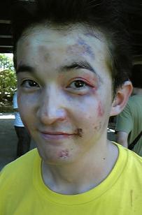 浅利陽介の結婚した嫁や子供を調べてみた!顔の傷の理由や濱田岳との似てる画像も | 気になるあの人の噂まとめ★BuzzPress (バズプレス)